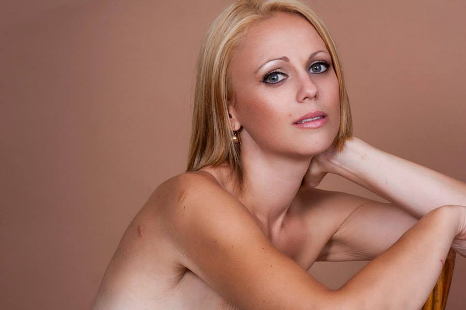 Double mastectomy pictures