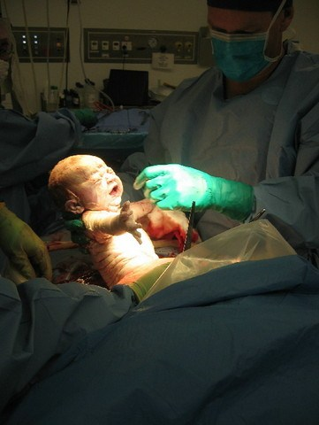 alana-birth